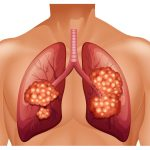 5-year Survival for Lung Cancer Improved 26%