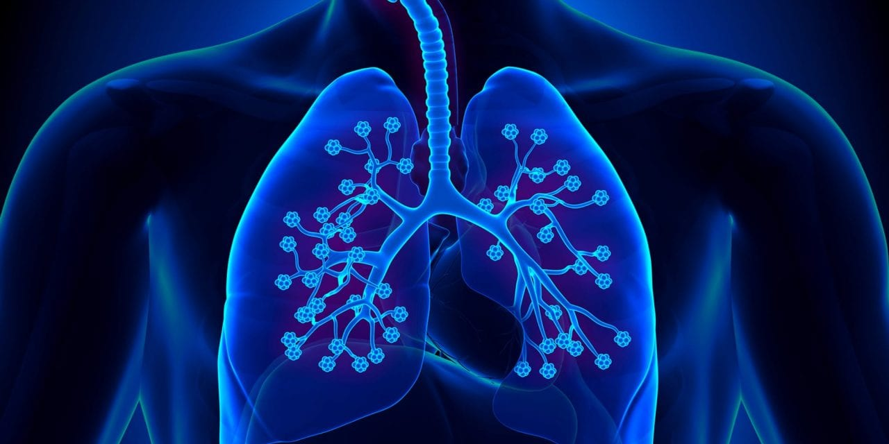 Life-Saving Tactic In Detecting Lung Cancer Now Being Offered For Free in New York
