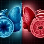 Tezepelumab Reduced Exacerbation Rates in severe Asthma 77%