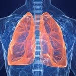 Could Infrared Light Treat Lung Cancer?