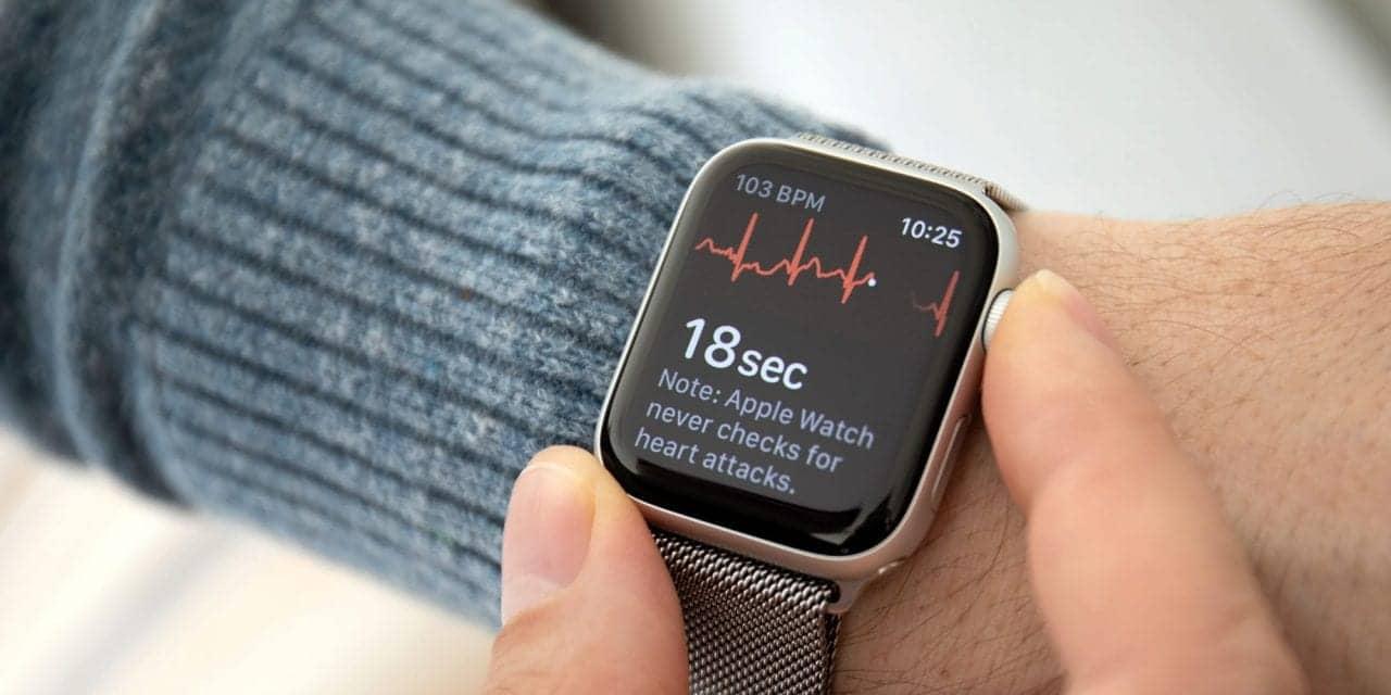 Apple Watch ECG Versus Standard ECG