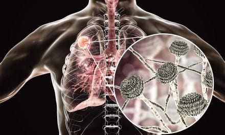 Smokers More Susceptible to Invasive Fungal Disease