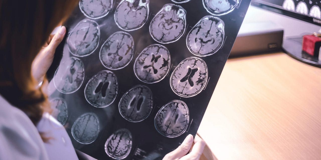 Respiratory Illness, Lung Function Tied to Greater Dementia Risk