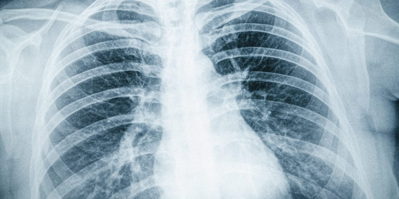 Initial Severity of COVID-19 Not Tied to Later Poor Health or Respiratory Complications