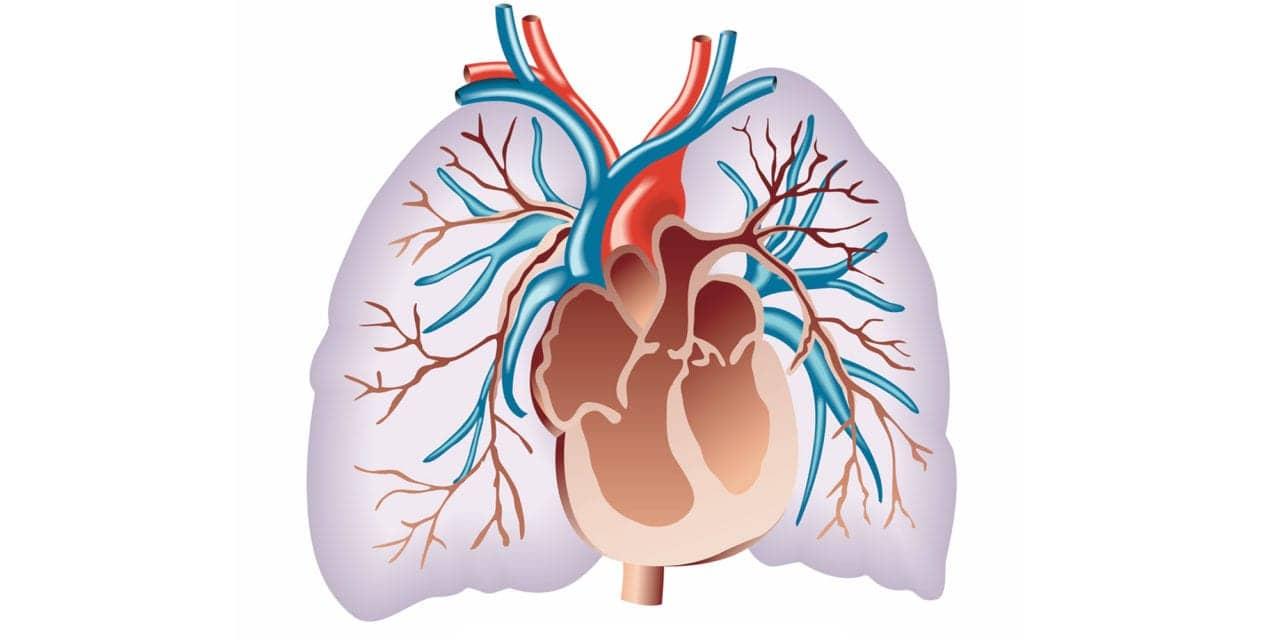 Pulmonary Hypertension Implant Gets FDA Breakthrough Tag