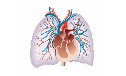 Phase 3 Trial to Test Inhaled Nitric Oxide for Pulmonary Fibrosis-related Pulmonary Hypertension