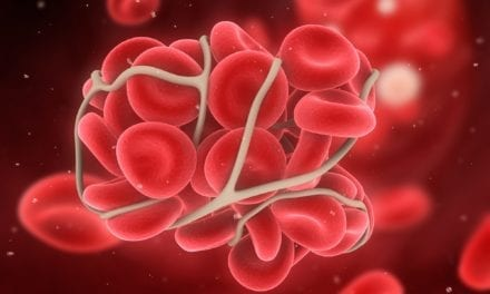 COVID-19 Patients Treated for Blood Clots Showed Rapid Improvement