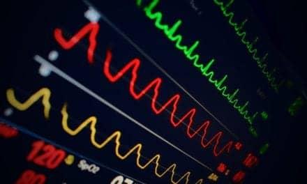 EKGs May Indicate Worsening COVID-19 or Influenza