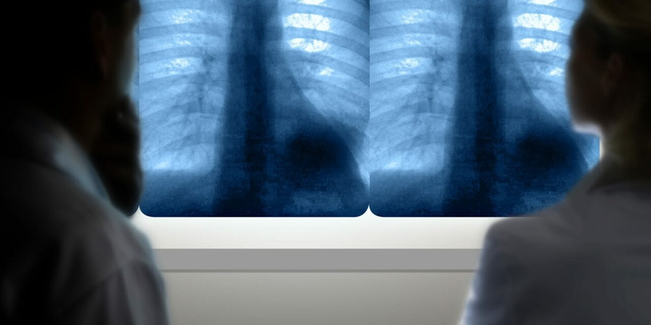 Drugs Create Balancing Act for Patients with Non-small Cell Lung Cancer