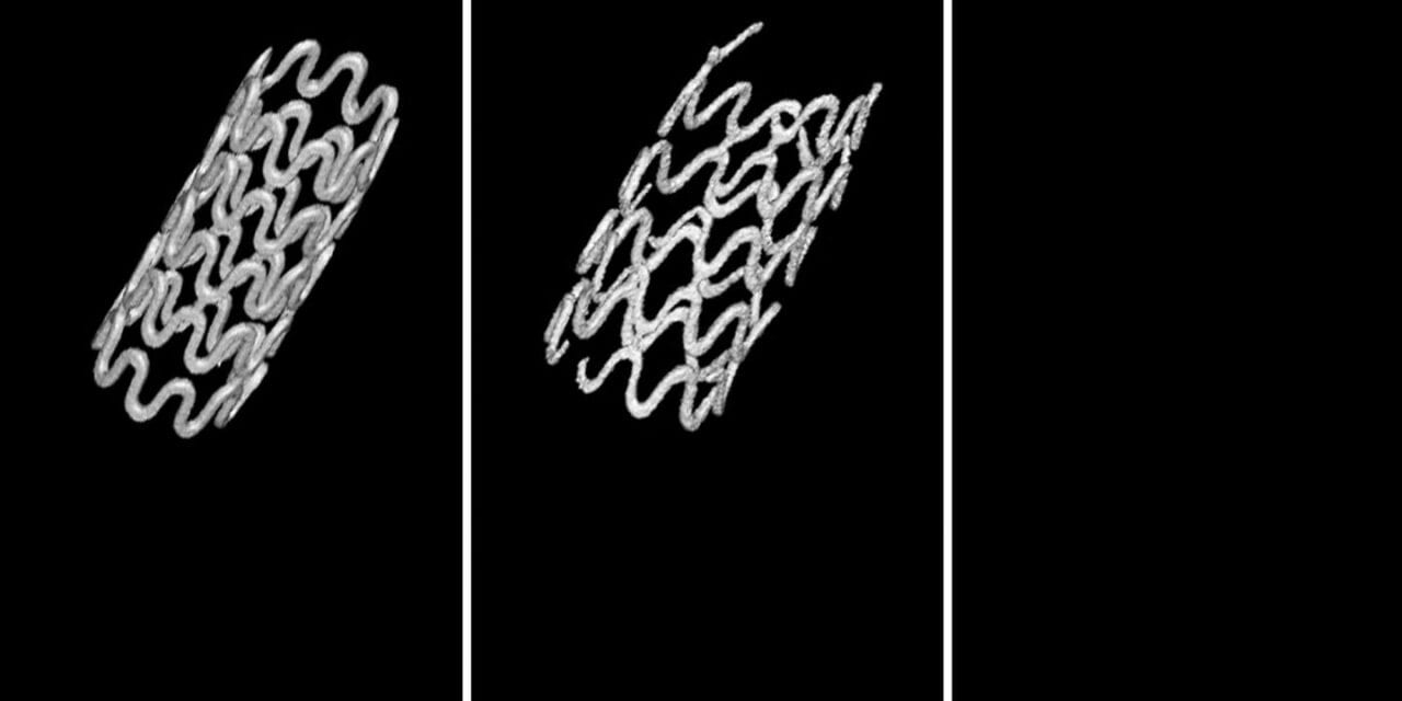 Breathing Easier With A Better Tracheal Stent