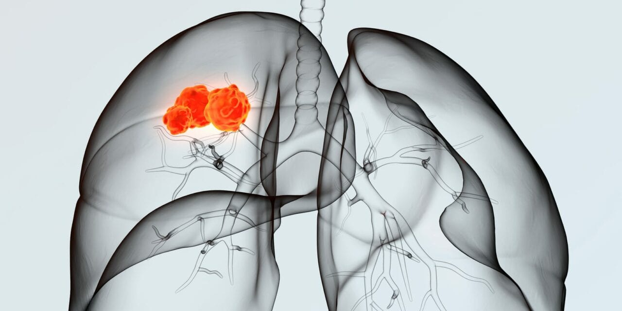 Deep Learning May Help Doctors Choose Better Lung Cancer Treatments