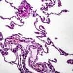 Investigating Immune Responses in Emphysema